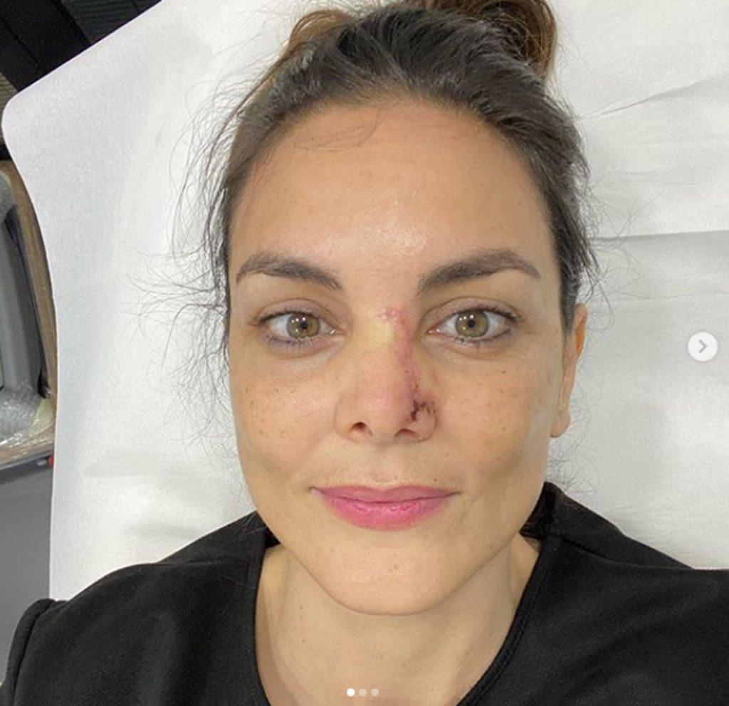 """Mónica Carrillo confiesa que ha tenido cáncer: """"La vida nos da garras"""" 2"""